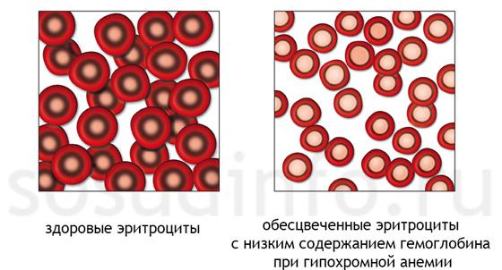 az alacsony hemoglobin súlycsökkenést okozhat)