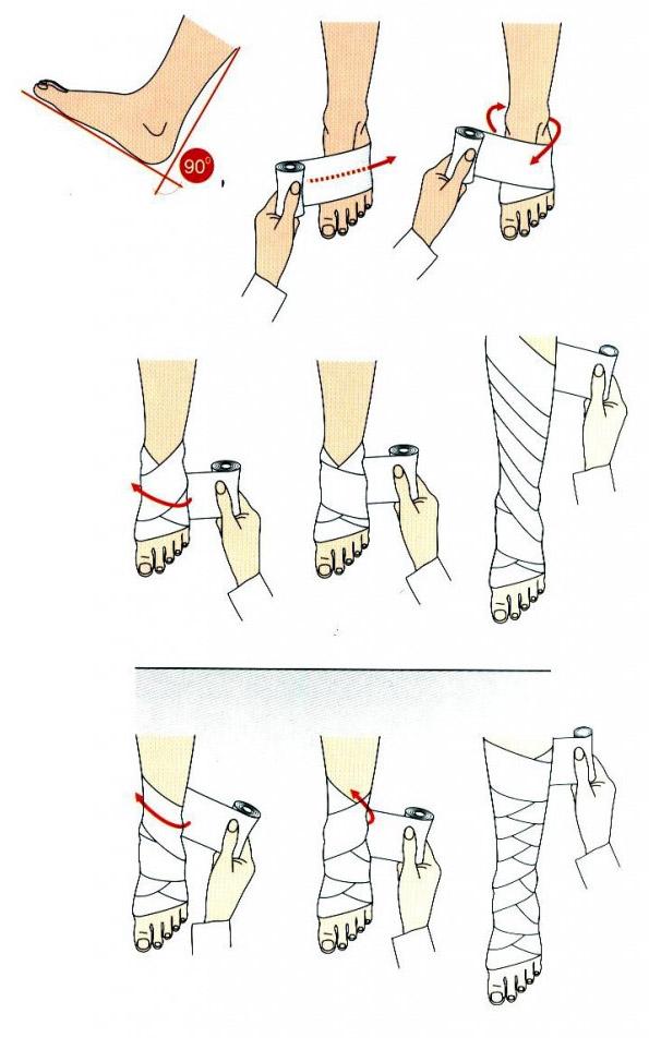 golf de compresie deasupra genunchiului în varicoză)