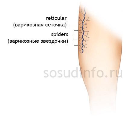 Сосудистая сетка на ногах: как избавиться от проблемы. Как избавиться от венозной сетки на ногах: народное и традиционное лечение