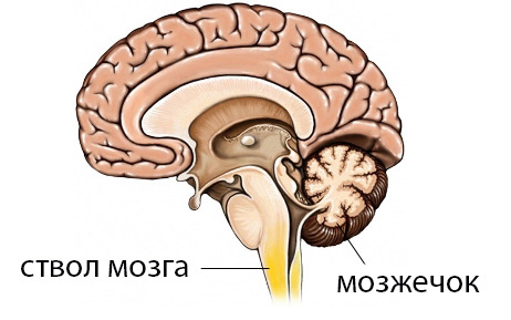 Проблемы с мозжечком симптомы