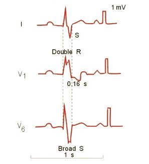 hipertenzijos preductal mv