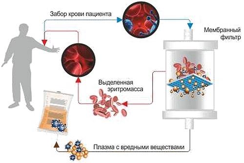 Prosztatagyulladás és a vér stagnálása a medencében