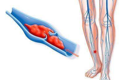 Рассасывает ли соленая вода тромбы в ногах. Как рассосать тромбы используя препараты и иные методы