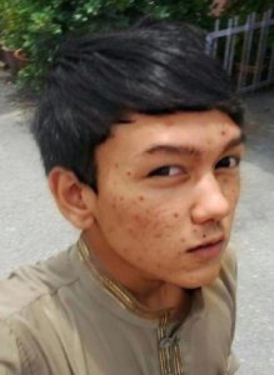 Malaysian Spends k on Cosmetic Surgery to Look Like His Favourite Anime Character