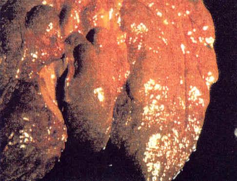 cirrhose1