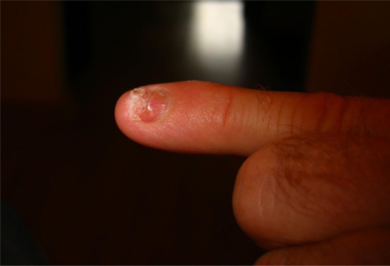 Smashed Fingernail Growing Out - Ideas de diseño para el