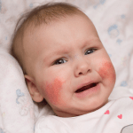 how to treat boils on toddlers buttocks