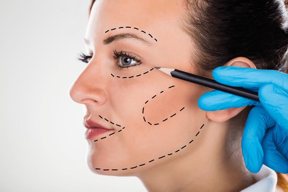 Face Liposuction
