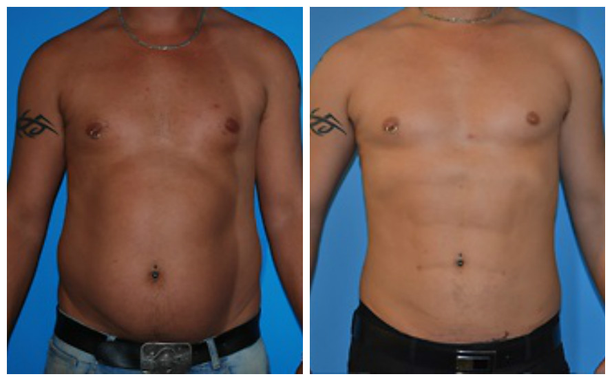 Lipo Before and After Male