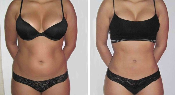 liposuction before and after woman