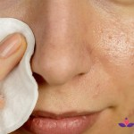 The Misnomer 'Fungal Acne' Is Not Uncommon