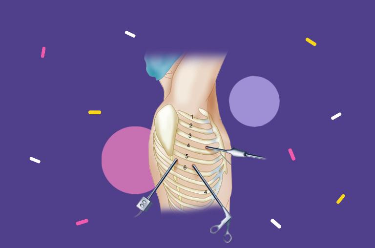 Endoscopic Thoracic Sympathectomy