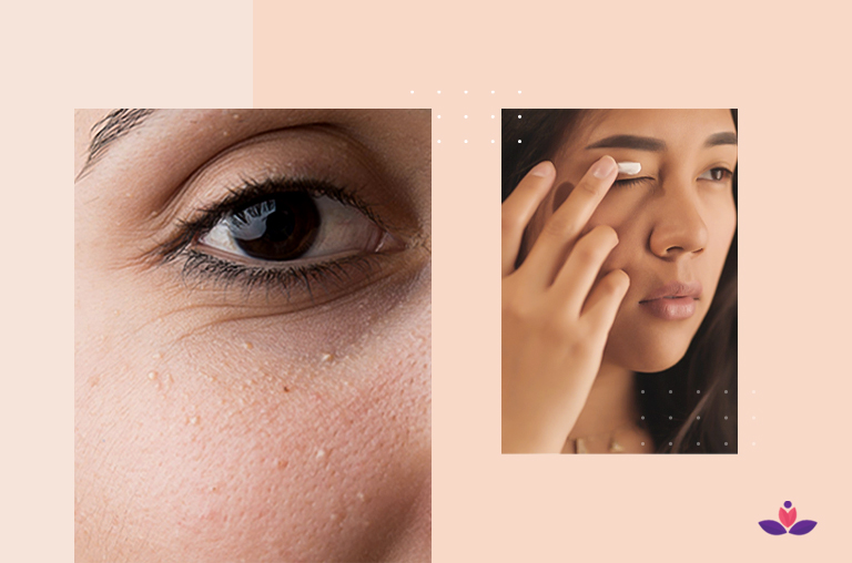 Milia Under Your Eyes- Causes, Symptoms, And Treatment