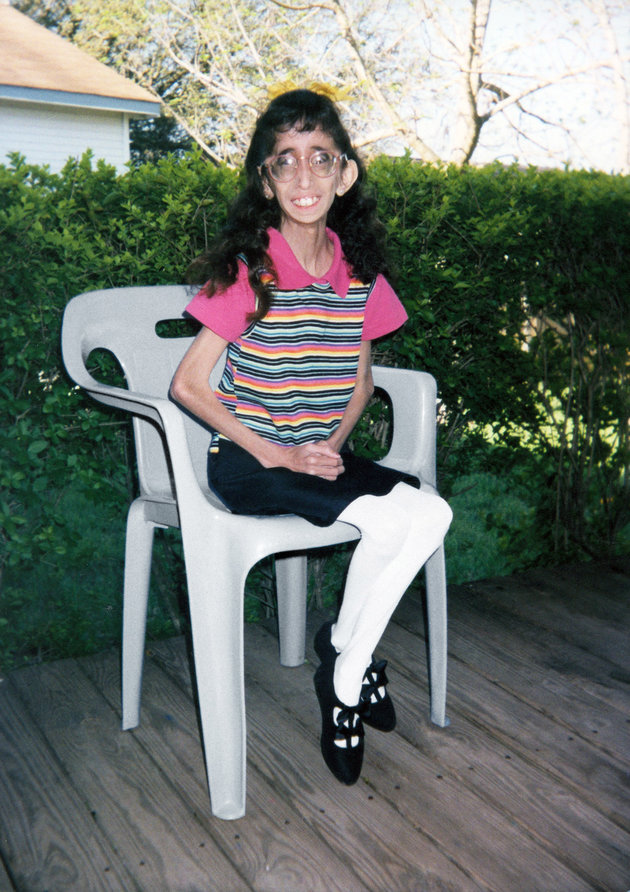 AUSTIN, TEXAS - UNDATED: *** EXCLUSIVE *** This undated collected photo shows Lizzie Velasquez, aged 12. Lizzie, now age 21, has a rare and undiagnosed syndrome that prevents her from putting on weight. Despite the fact she eats high calorie food every 15-20 minutes she remains the same weight as the average 8-year-old. Doctors are still unsure what condition Lizzie may have but two similar cases have been found; one in the UK and one in the USA. Despite some medical problems Lizzie leads a full and active life. She goes to university in Texas and hopes to become a motivational speaker. (Photo by Barcroft USA / Getty Images)
