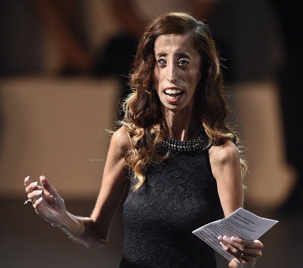 "US writer and motivational speaker Lizzie Velasquez delivers a speech during a conference at the National Auditorium in Mexico city, on September 5, 2014 in the framework of Telmex foundation's ""Mexico Siglo XXI"" forum, owned by Mexican tycoon Carlos Slim. AFP PHOTO/RONALDO SCHEMIDT        (Photo credit should read RONALDO SCHEMIDT/AFP/Getty Images)"