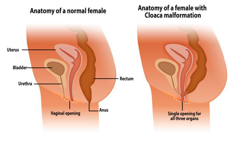 Урологические проблемы анального секса