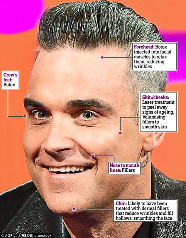 396543ee00000578-0-robbie_has_had_several_cosmetic_surgeries_to_get_him_looking_you-m-62_1476487935703
