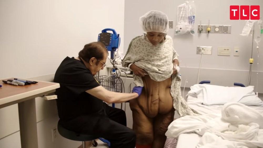 В США запустили шоу о людях с лишней кожей после похудения — фото