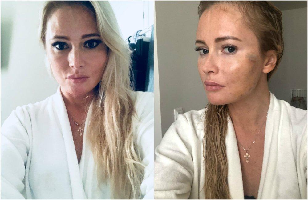 42-летняя Дана Борисова показала свою пластическую операцию — фото