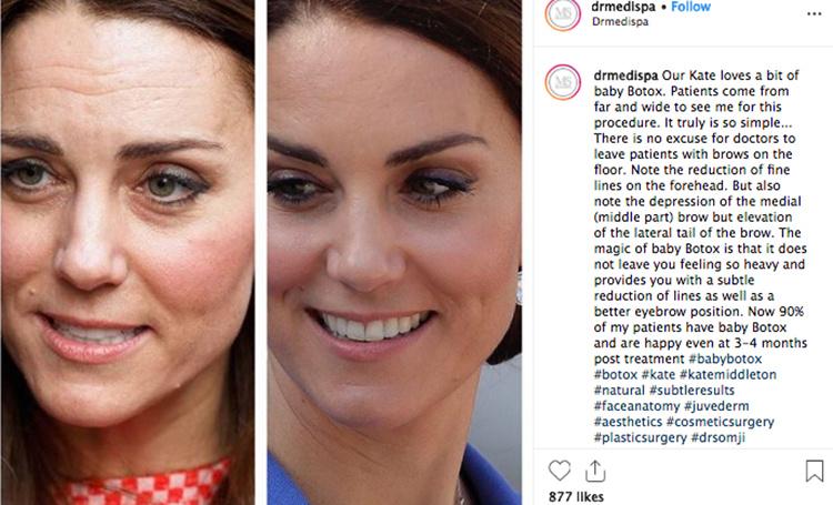 Пластический хирург рассказал об инъекциях Ботокса Кейт Миддлтон — фото
