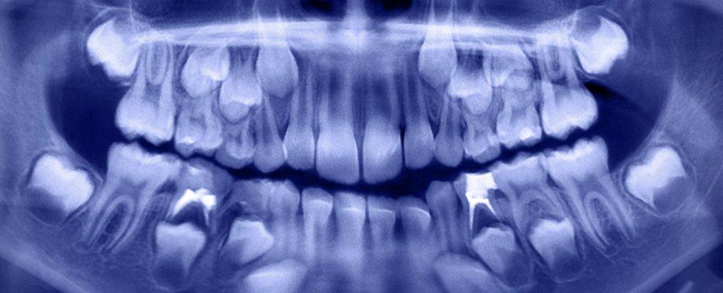 500 de dinti