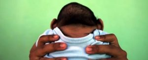 microcefalie
