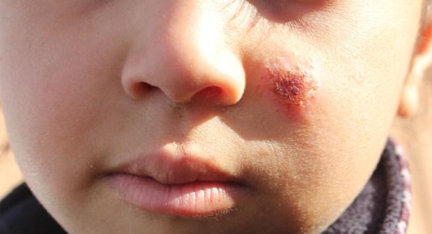 وزارة الصحة:  1420 تلميذ مصاب باللشمانيا بدرعة تافيلالت تلقوا العلاجات الضرورية