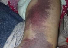 حالة إنسانية: سيدة تعرضت لكسر تحتاج لإجراء عملية مستعجلة