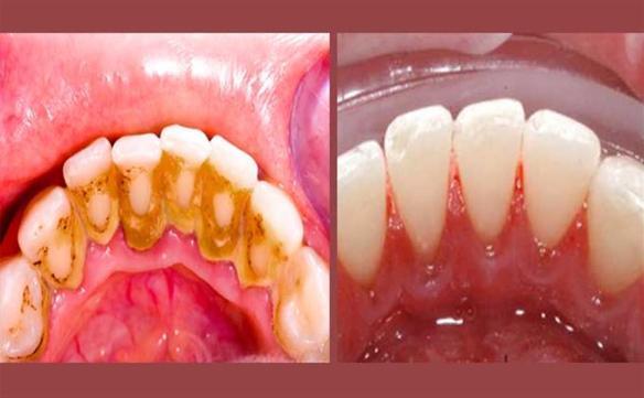 He aquí una forma rápida de eliminar el sarro de los dientes
