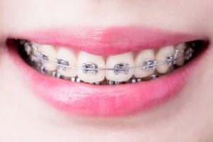Braces Price in South Africa