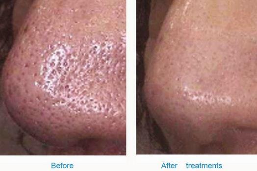 Large Pores - Southern Cosmetic Laser   Charleston Botox ...