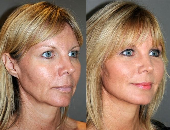 Laser Tightening Southern Cosmetic Laser Charleston
