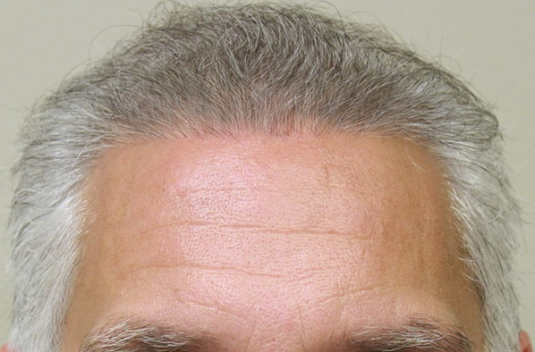 Southern Hair Restoration Before and After Smart Graft
