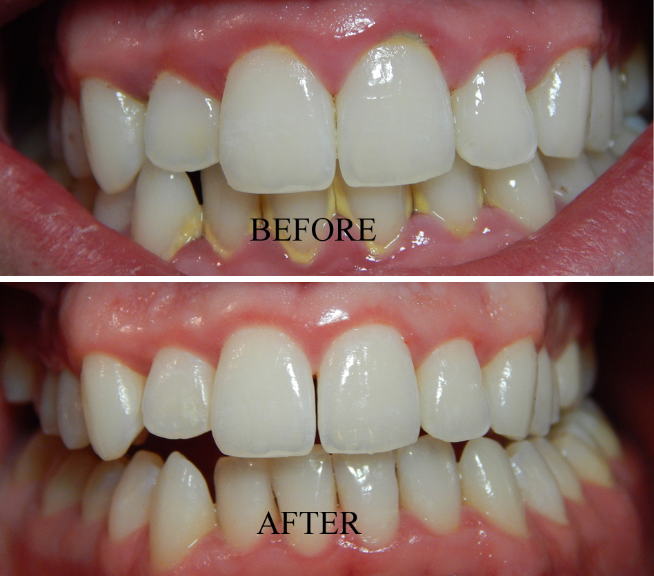 Gum Care and Prevention  Southtowns Dental Services