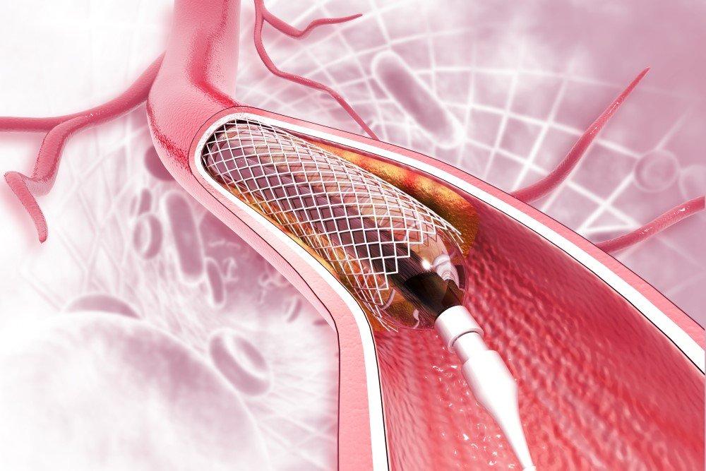 Coronary Artery Angioplasty / Stenting in El Paso TX