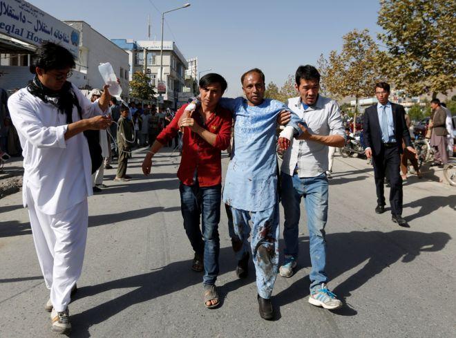 Число жертв теракта в Кабуле достигло 80 человек