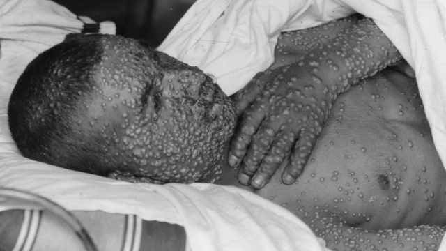 A boy with smallpox blisters al over his body