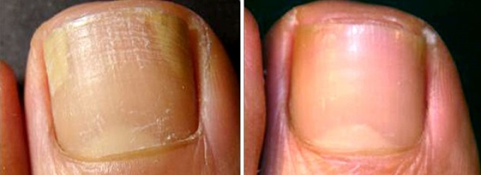 Distalinis onichomikozės gydymas
