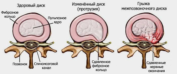 Oszteoporózis