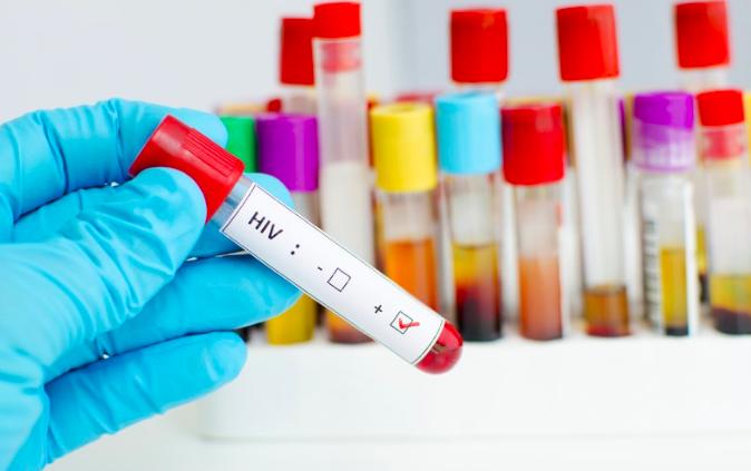 Logran eliminar el VIH en pacientes con trasplantes de células madre