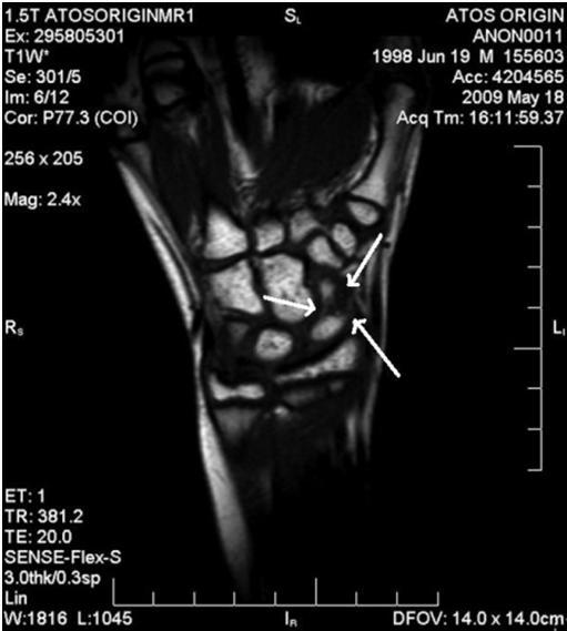 La fractura del escafoides en un portero de futsal (1/3)