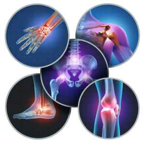 Computerized image of different types of arthritis