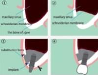 sinus lifting dental implants