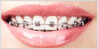 Self Litigating Braces