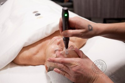 Micro Needling Definition and Cost