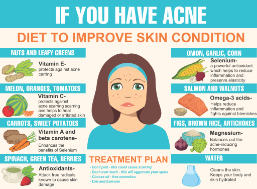 Best Foods for Oily Skin and Acne