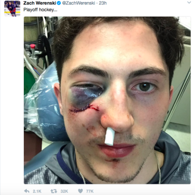Puck to the face! Did you see this???