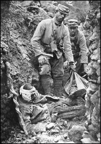 Image result for world war 1 trenches wounded