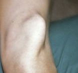 Photo of a dislocated kneecap, in case you really want to see one