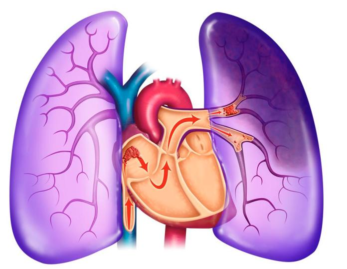 Pulmonary embolism, clot, PE, chest pain, dyspnea, shortness of breath, sudden death